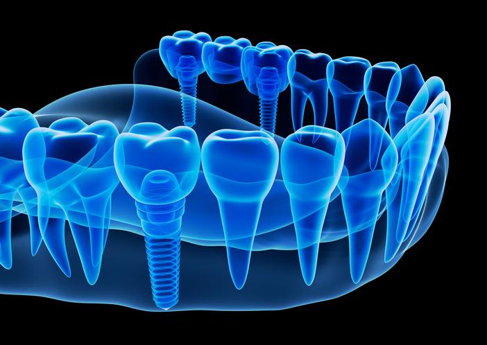 Dental Implants: Busting the Myths